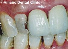 歯の神経を抜かない治療法/歯の神経を取らない治療法カリソルブ治療例(東京)前