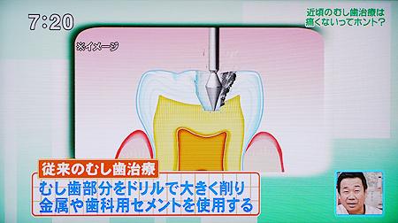 カリソルブ歯を削らない虫歯治療