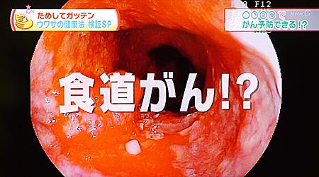 口腔ケア(歯磨き)でがん予防3