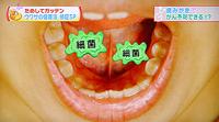 口腔ケア(歯磨き)でがん予防6-1