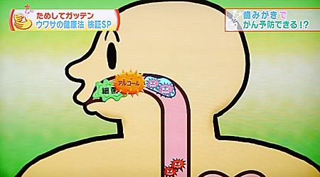 口腔ケア(歯磨き)でがん予防7
