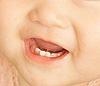 次亜塩素酸電解水パーフェクトペリオ殺菌水治療乳児