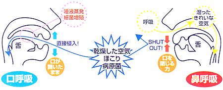 口臭の治療法(東京)口呼吸