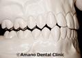 噛み合わせ治療犬歯誘導