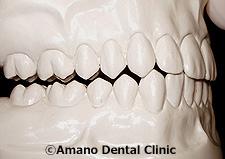 良い噛み合せ(犬歯誘導)模型2
