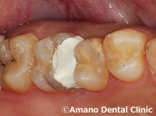 歯の神経を抜かない治療法/歯の神経を取らない治療法ドックベストセメント東京治療後