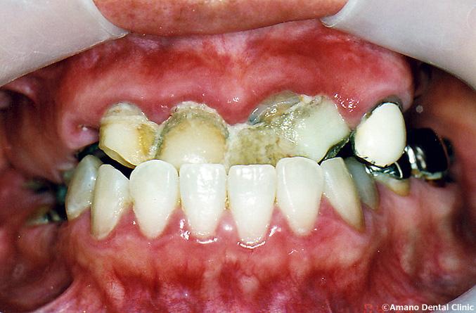 ひどい虫歯の治療例