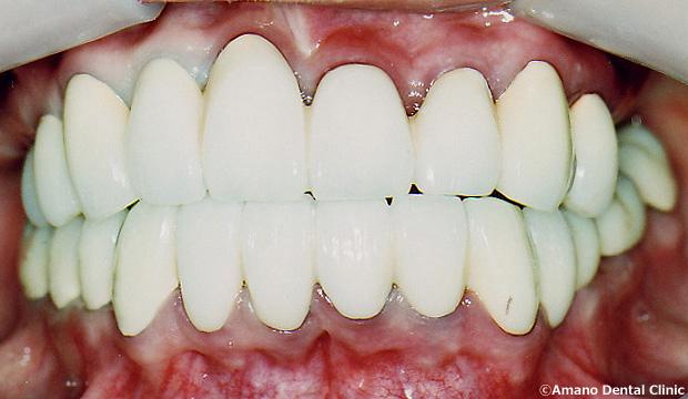 ひどい虫歯の治療後33歳女性