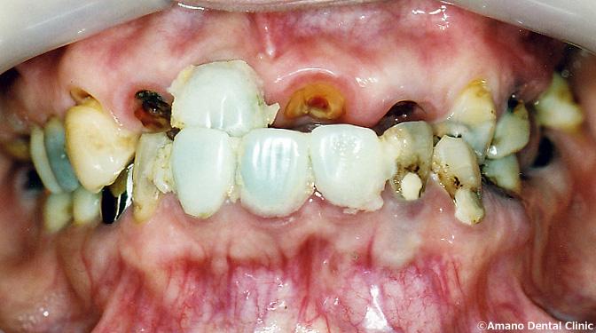 ひどい虫歯の治療前33歳女性