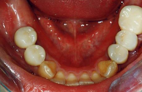 ひどい虫歯の治療後