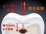 虫歯診断装置ダイアグノデントペン原理