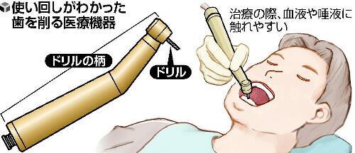 歯削る機器7割使い回し/図