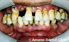 歯槽膿漏の治療前58歳男性