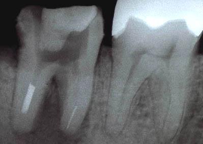 歯の根の専門医による治療(顕微鏡を使った根管治療)