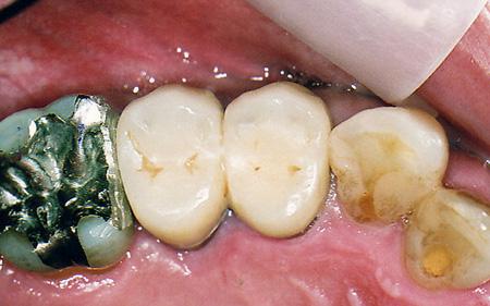 ファイバーコア(樹脂の歯の土台)ー被せ物