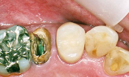 ファイバーコア(樹脂の歯の土台)治療前