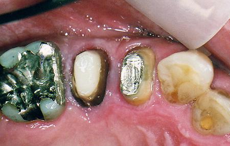 ファイバーコア(樹脂の歯の土台)治療後