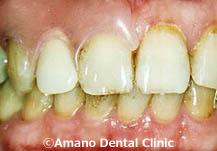 バネの見えない入れ歯1治療後