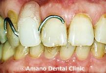 バネの見えない入れ歯1治療前