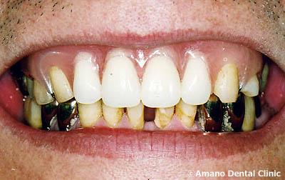 バネの見えない入れ歯4治療後