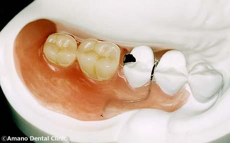 良く噛める入れ歯/バネの見えない入れ歯