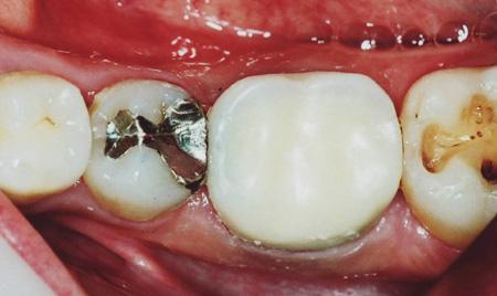 歯科セカンドオピニオン治療後