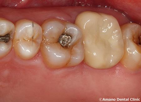 割れた歯の治療後2