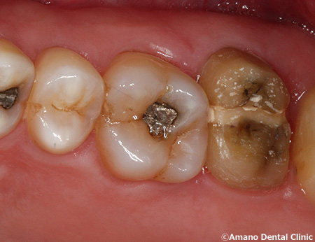 割れた歯の治療中2