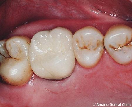 割れた歯の治療法 治療後