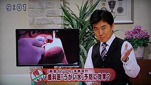 新型インフルエンザ歯科医「うがい水」に注目(パーフェクトペリオ)スタート