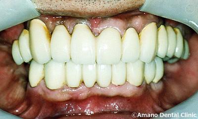 歯槽膿漏の治療後58歳男性