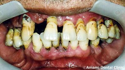 歯槽膿漏 治療前
