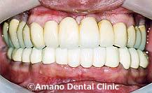 歯槽膿漏,歯周病と糖尿病治療後