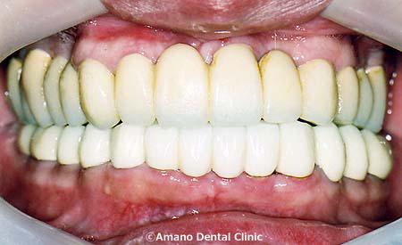 歯槽膿漏の治療後38歳男性