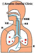 誤嚥性肺炎/誤えん性肺炎誤嚥