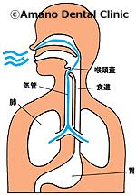 誤嚥性肺炎/誤えん性肺炎呼吸