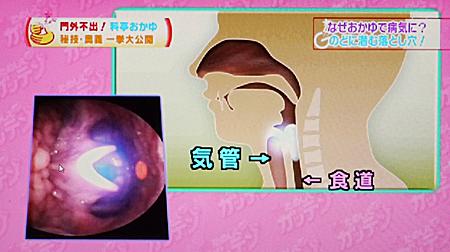 誤嚥性肺炎/誤えん性肺炎6