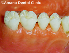悪い噛み合わせによる歯の揺れ(咬合性外傷)正常歯肉