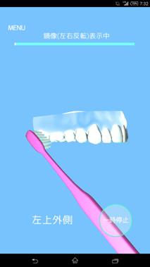 歯磨きアプリ/歯磨き貯金図1