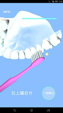 歯磨きアプリ/歯磨き貯金図6