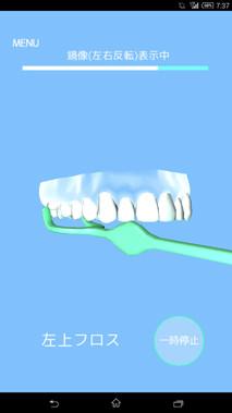 歯磨きアプリ/歯磨き貯金図8