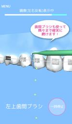 矯正歯磨きアプリ/矯正歯磨き貯金3