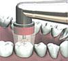 ヒールオゾン治療東京/歯を削らない虫歯治療歯絵1
