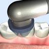ヒールオゾン治療東京/歯を削らない虫歯治療歯