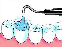 ヒールオゾン治療東京/歯を削らない虫歯治療初期虫歯治療1