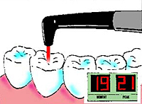 ヒールオゾン治療東京/歯を削らない虫歯治療計測