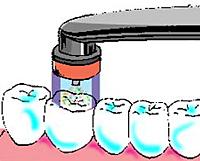 ヒールオゾン治療東京/歯を削らない虫歯治療初期虫歯治療3