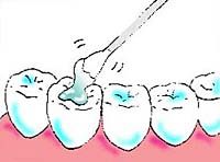 ヒールオゾン治療東京/歯を削らない虫歯治療薬塗布