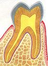 歯の神経を抜かない治療法/歯の神経を取らない治療法図