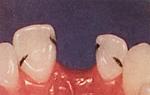 歯を削らないブリッジヒューマンブリッジ前歯治療前